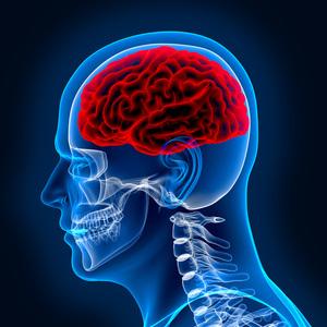 X-ray Brain