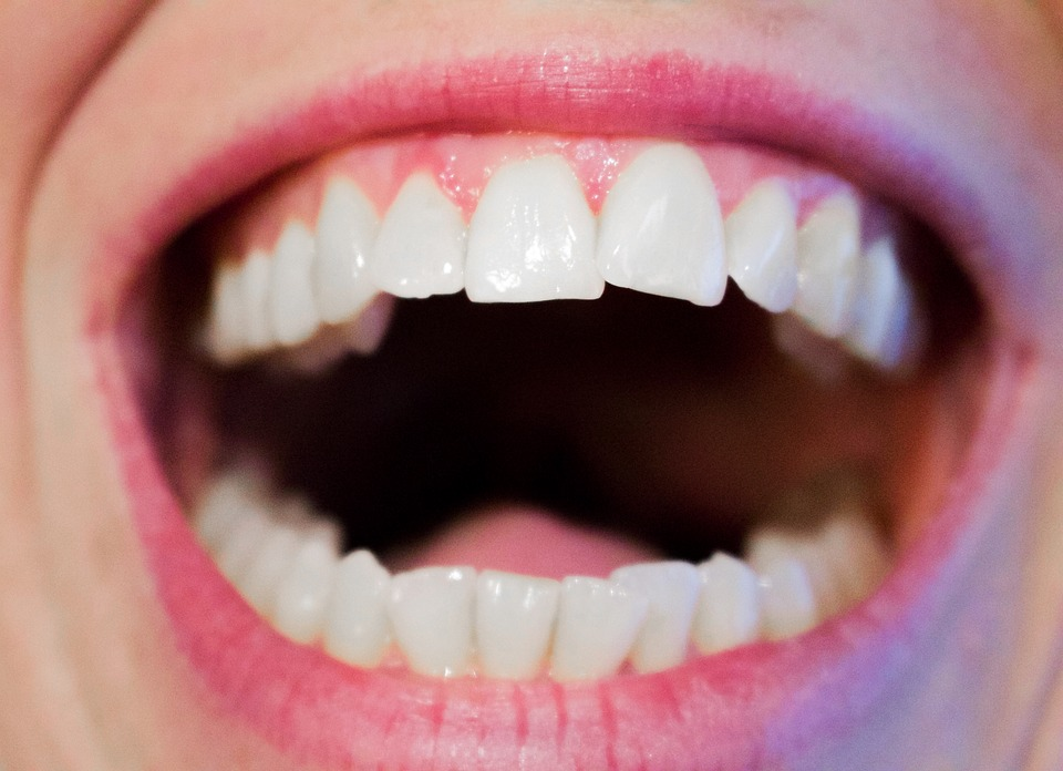 Coconut oil pulling can lead to great looking teeth because of its antibacterial activity and healing power