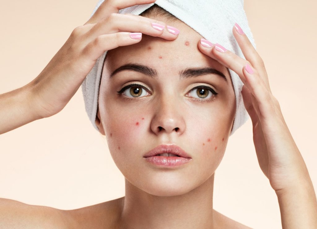 Use a cinnamon mixture to get rid of your acne naturally