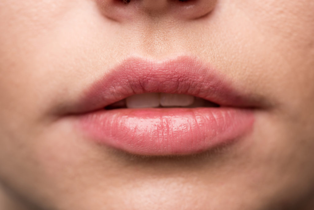 plump your lips with cinnamon naturally