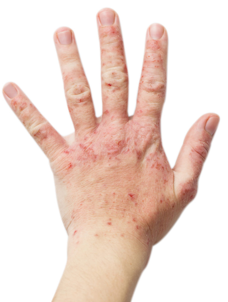 use cinnamon to get rid of skin disorders like eczema